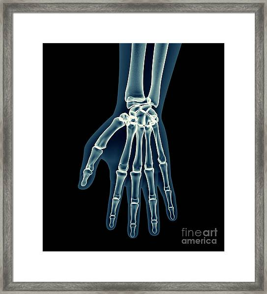 X-ray Human Body Of A Man With Skeleton Framed Print