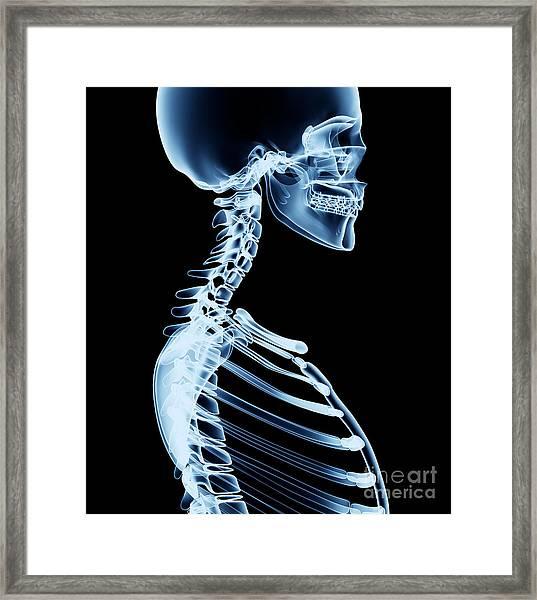 X-ray Skeleton Röntgen On Black Framed Print