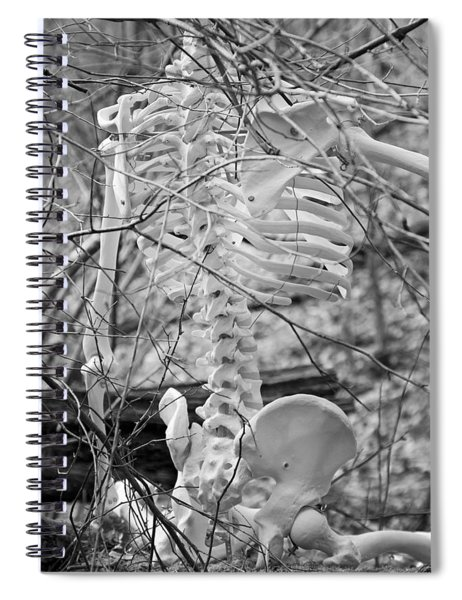 This Is Your Spinal Notice Spiral Notebook