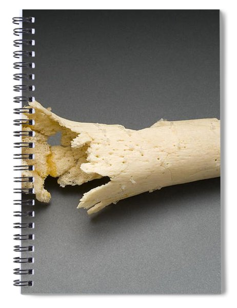 Human Distal Femur, Gunshot Wound, 1984 Spiral Notebook