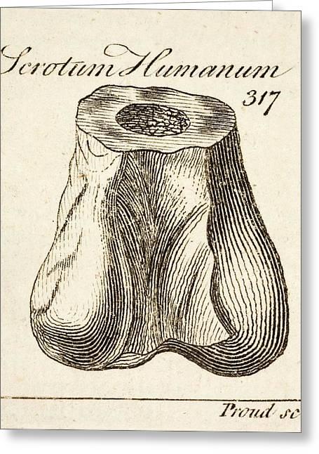 1763 Dinosaur Bone Misidentified Scrotum Greeting Card by Paul D Stewart