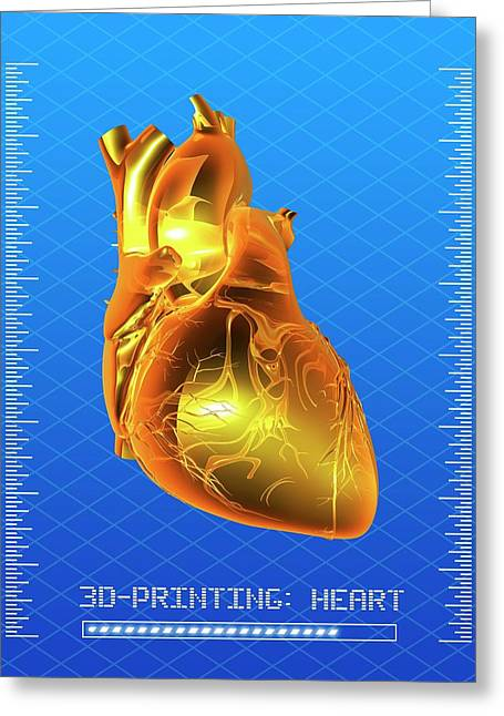 3d Printing Of A Human Heart Greeting Card by Alfred Pasieka