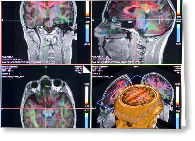 Advanced Mri Brain Scans Greeting Card by Philippe Psaila/science Photo Library