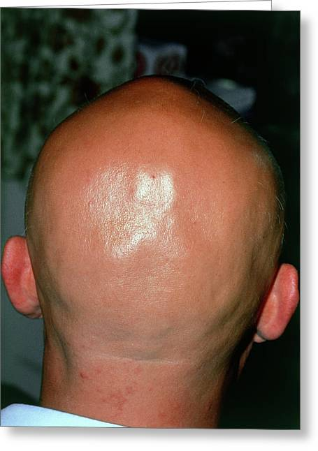 Alopecia Areata (hair Loss) Over The Scalp Of Man Greeting Card by Dr P. Marazzi/science Photo Library