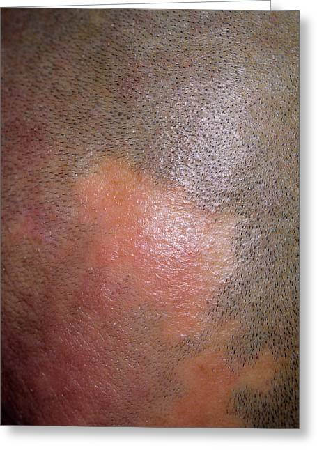 Alopecia Greeting Card by Dr P. Marazzi/science Photo Library