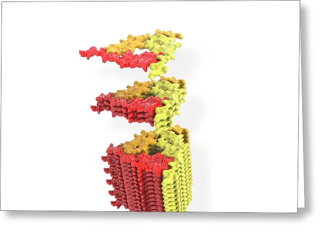 Alzheimer's Beta-amyloid Fibril Greeting Card by Ramon Andrade 3dciencia