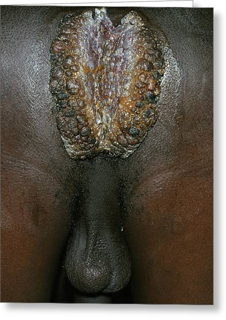 Anal Warts Of An Aids Patient Greeting Card by Dr M.a. Ansary/science Photo Library