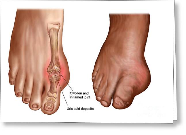 Anatomy Of A Swollen Foot Greeting Card