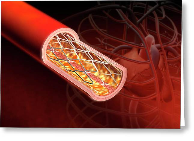 Angioplasty Greeting Card by Harvinder Singh