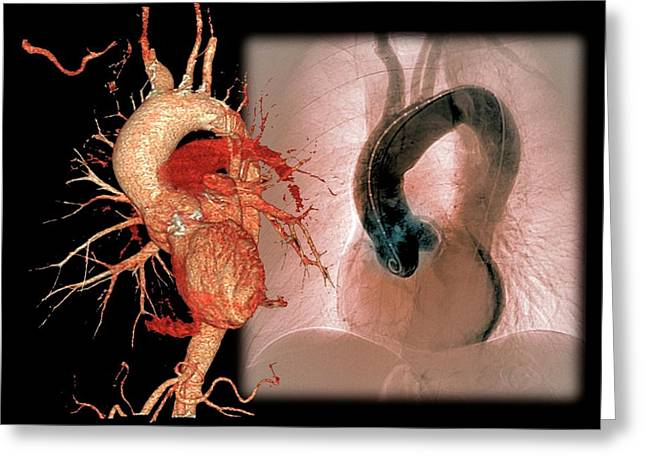 Aortic Aneurysm In Hypertension Greeting Card
