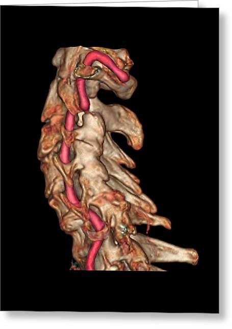 Arthritis Of The Neck Greeting Card by Zephyr