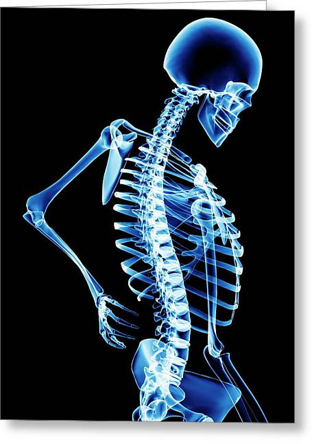 Back Pain Greeting Card by Pasieka