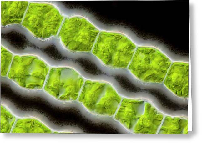 Bambusina Sp. Green Alga Greeting Card by Gerd Guenther