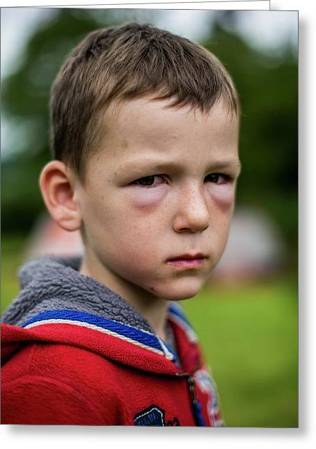 Boy With Hay Fever Allergic Reaction Greeting Card