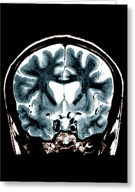 Brain In Huntington's Disease Greeting Card by Zephyr