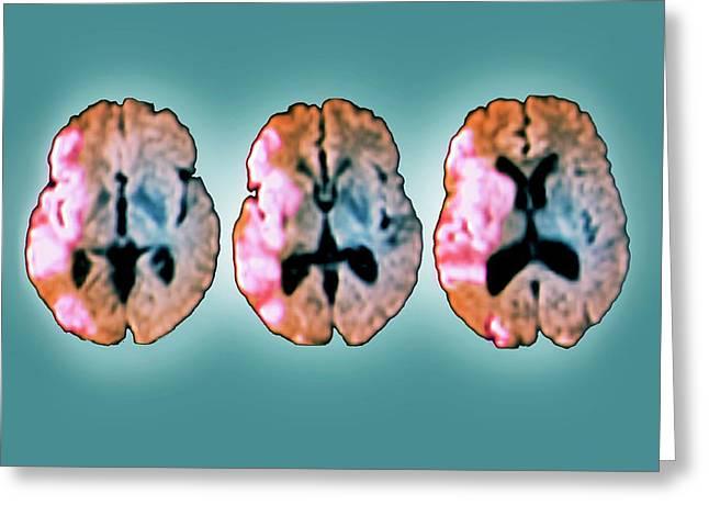Brain In Ischemic Stroke Greeting Card