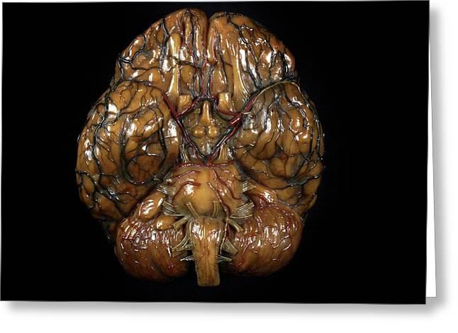 Brain Model Greeting Card by Javier Trueba/msf