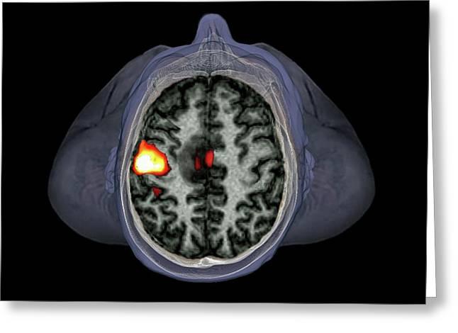 Brain Tumour Greeting Card by Zephyr