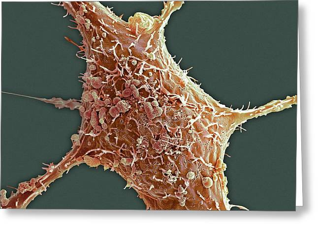 Breast Cancer Cell Greeting Card by Science Photo Library