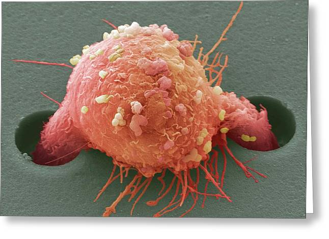 Breast Cancer Cell Greeting Card by Steve Gschmeissner