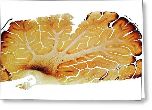 Cerebellum Greeting Card by Dr Keith Wheeler