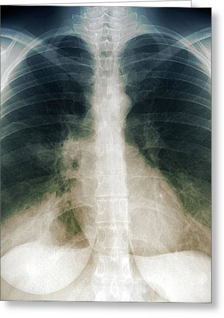 Chest Infection Greeting Card