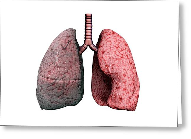 Chronic Obstructive Pulmonary Disease Greeting Card