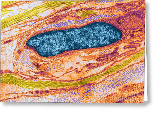 Collagen And Fibroblast, Tem Greeting Card by David M. Phillips