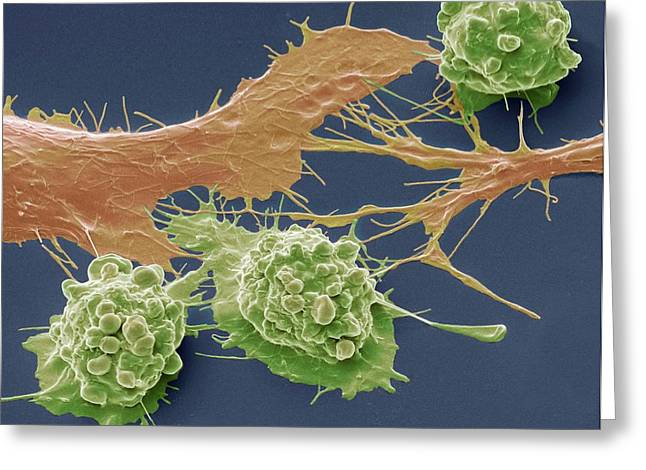 Colorectal Cancer Cells Greeting Card by Steve Gschmeissner