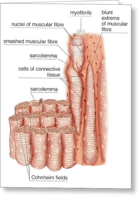 Composition Of Skeletal Muscle Fibres Greeting Card by Asklepios Medical Atlas