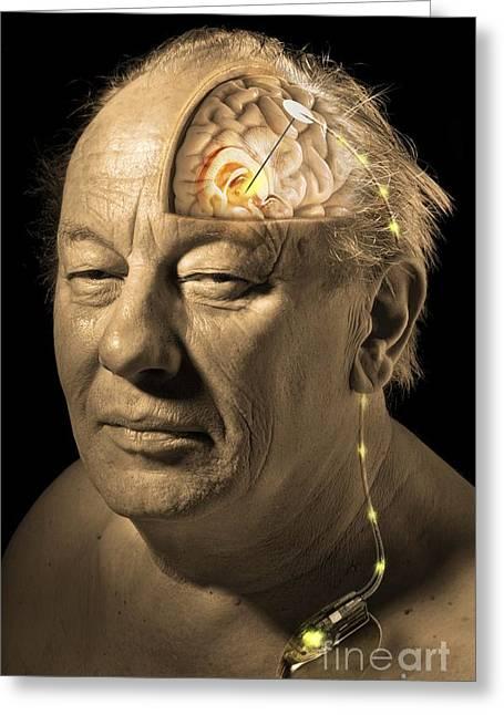 Deep Brain Stimulation, Artwork Greeting Card