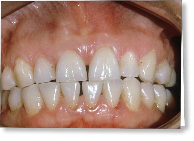 Dental Abrasion Greeting Card