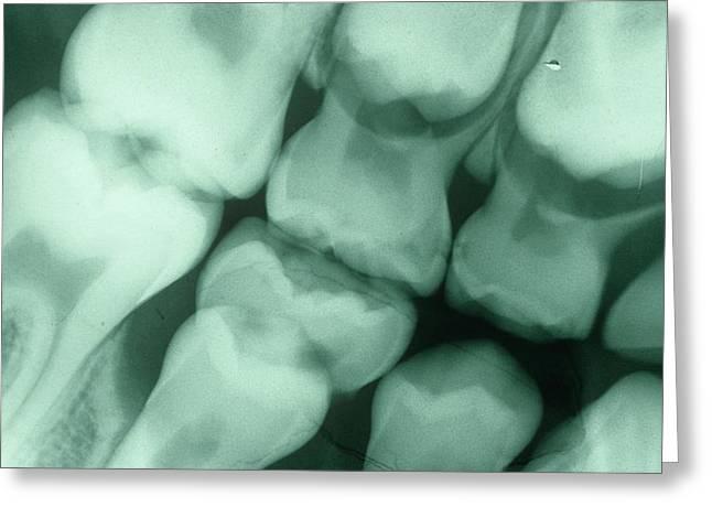 Dental X-ray Greeting Card by Dr. J.p. Casteyde - Cnri