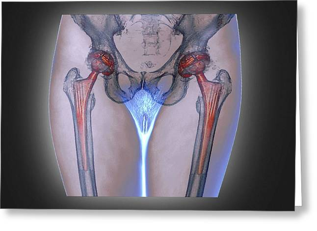 Double Hip Replacement Greeting Card by Zephyr