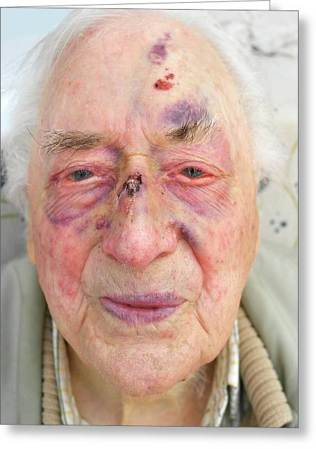 Elderly Man's Face After Fall Greeting Card by Tony Craddock