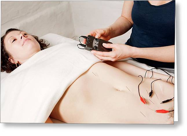 Electroacupuncture Fertility Treatment Greeting Card by Thomas Fredberg