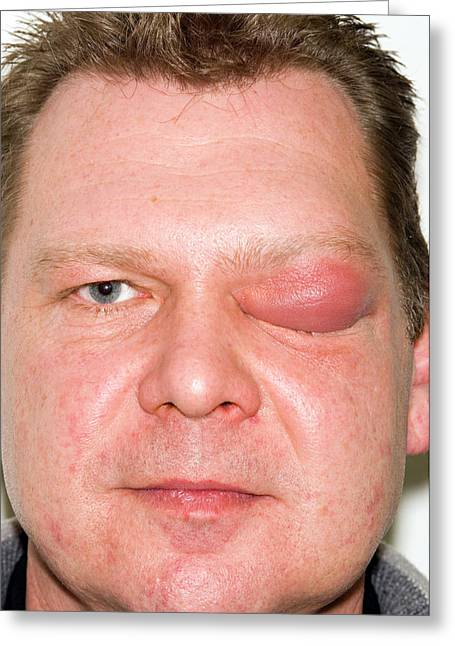 Eyelid Abscess Greeting Card by Dr P. Marazzi/science Photo Library