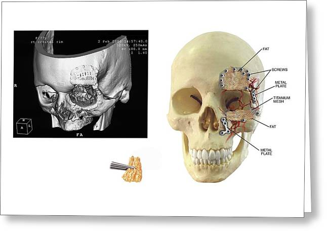 Facial Skull Fractures Fixation Greeting Card
