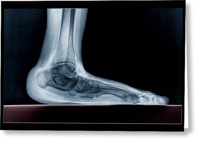 Flat Foot Greeting Card by Zephyr