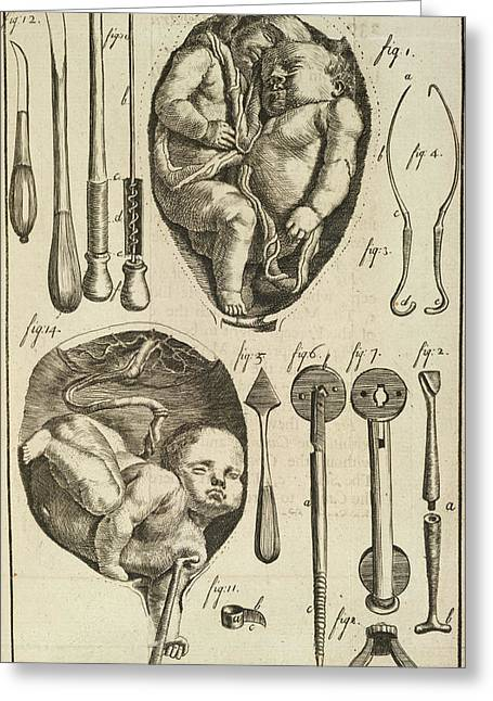 Foetus Greeting Card by British Library