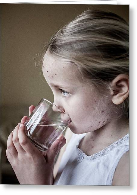 Girl With Chickenpox Greeting Card by Samuel Ashfield