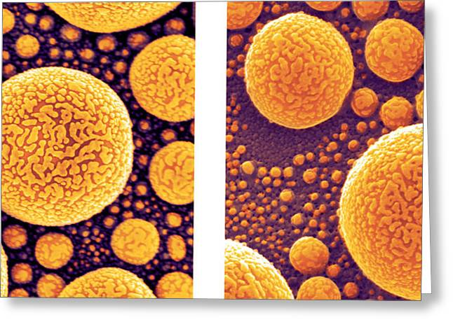 Gold Atoms, Sem Vs. Shim Greeting Card