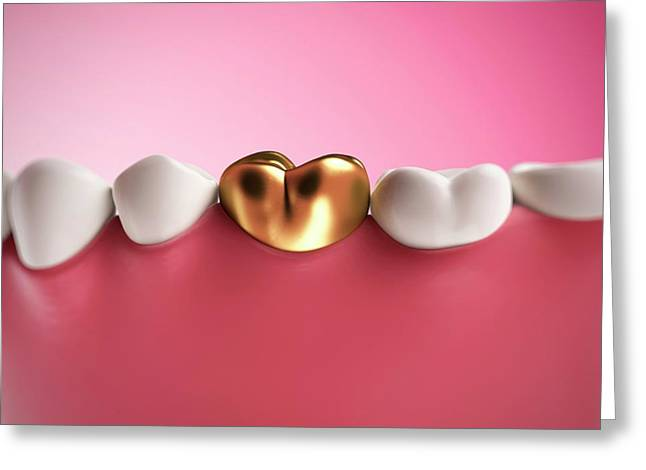 Gold Filling In Tooth Greeting Card