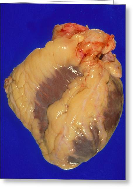 Gross Specimen Of A Healthy Human Heart Greeting Card