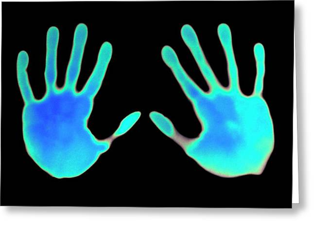 Hand Prints On Thermochromic Paper Greeting Card by Science Photo Library