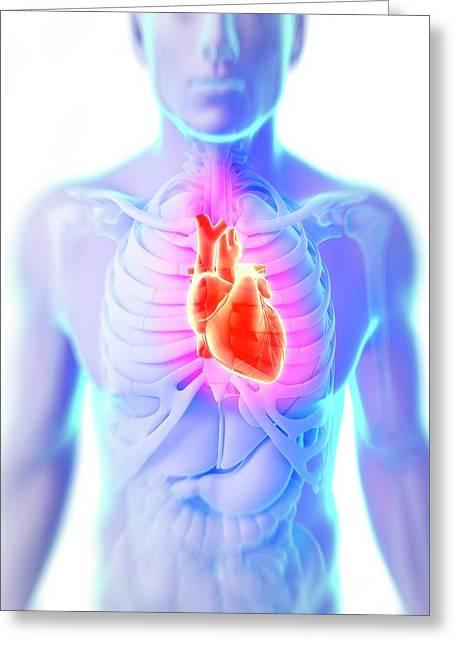 Heart Attack Greeting Card by Sebastian Kaulitzki
