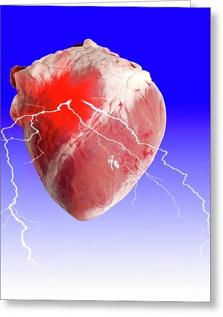Heart Attack Greeting Card by Victor De Schwanberg