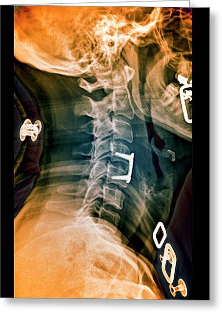 Herniated Spinal Disc After Treatment Greeting Card
