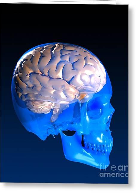Human Brain And Skull, Artwork Greeting Card
