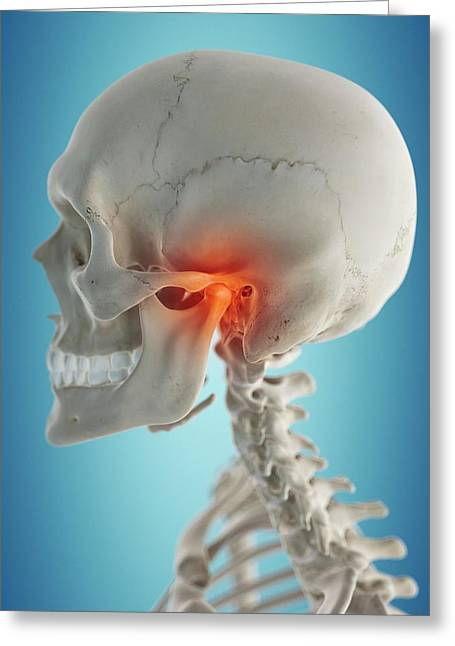 Human Jaw Greeting Card by Sciepro